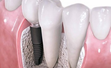 620 x 620 Dental Implants