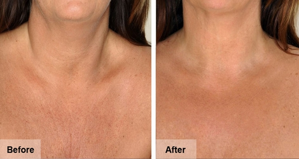 NATURAL-REMEDIES-TO-REDUCE-THE-WRINKLES-O-YOUR-NECK-AND-CHEST