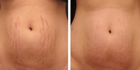 micro-needling-stretch-marks-before-and-after