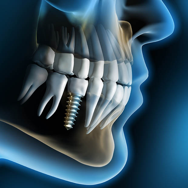 620 x 620 How long does it take to complete dental implant treatment