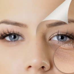 Patient-story-facelift-and-laser-resurfacing-620x265
