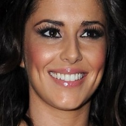cheryl-cole-teeth-620x265