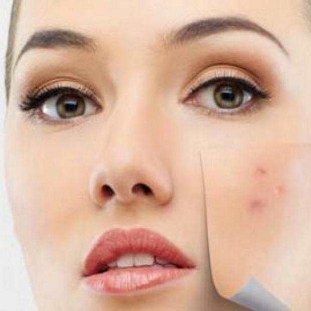 Skin-peels-620x265