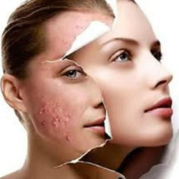 dermapen acne treatments