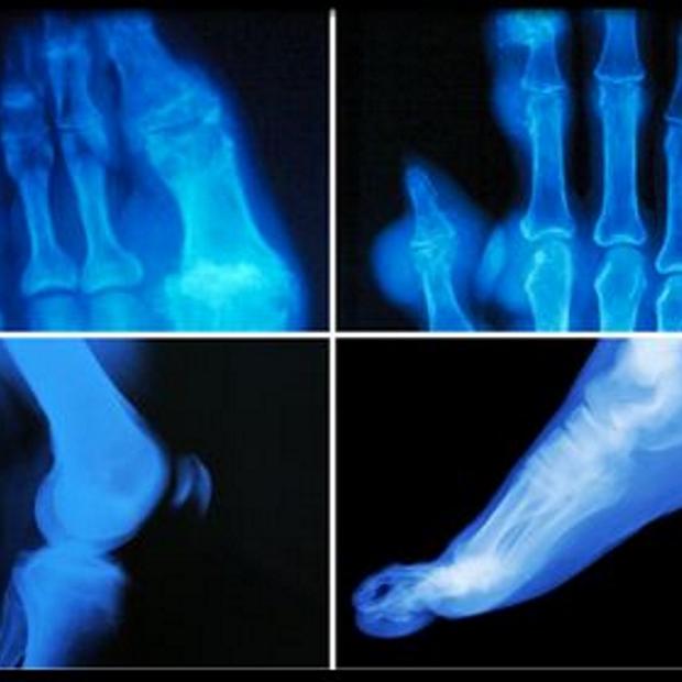 arthritis joint inflammation
