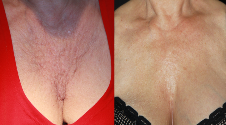 PRP improves chest wrinkles