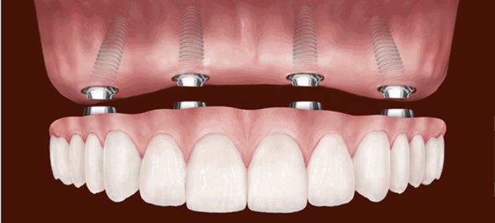multi dental implants
