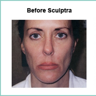 sculptra for gaunt face