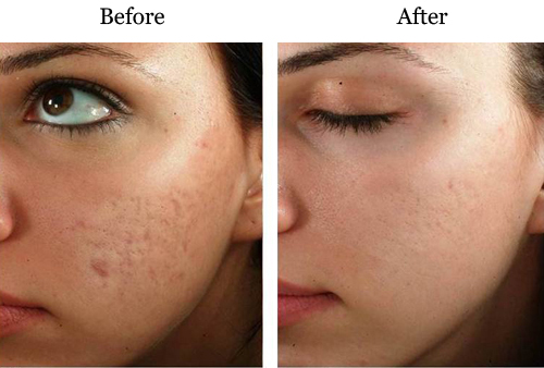 Micro-needling acne scars before and after