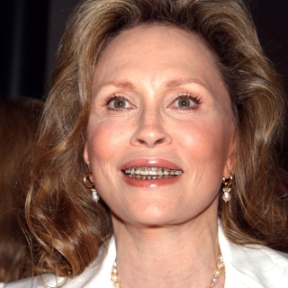 faye-dunaway-braces-featured
