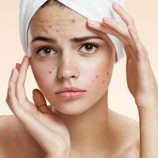 acne-medcare