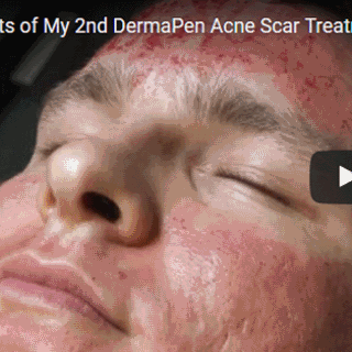 dermapen-for-acne-medcare