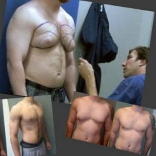 no-more-man-boobs-surgery