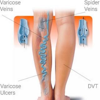 veins-diagram-featured