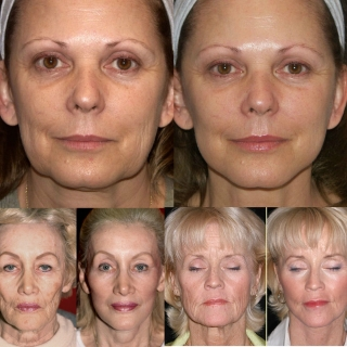 facelfts before and after