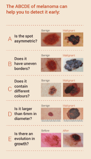 melanoma check