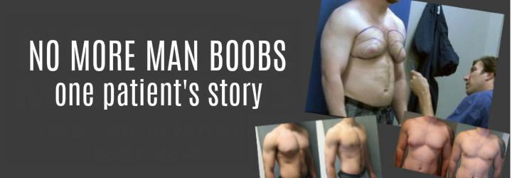 no more man boobs