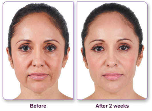 Juvederm_Before-After_4
