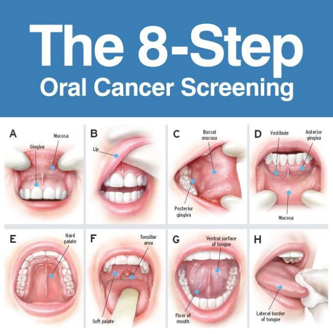8-step-oral-cancer-screening