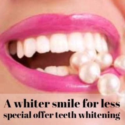 whiter smile for less