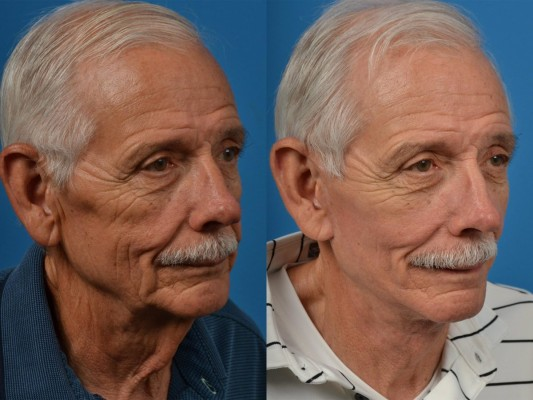 patient-53646-facelift-before-after-9-1200x900